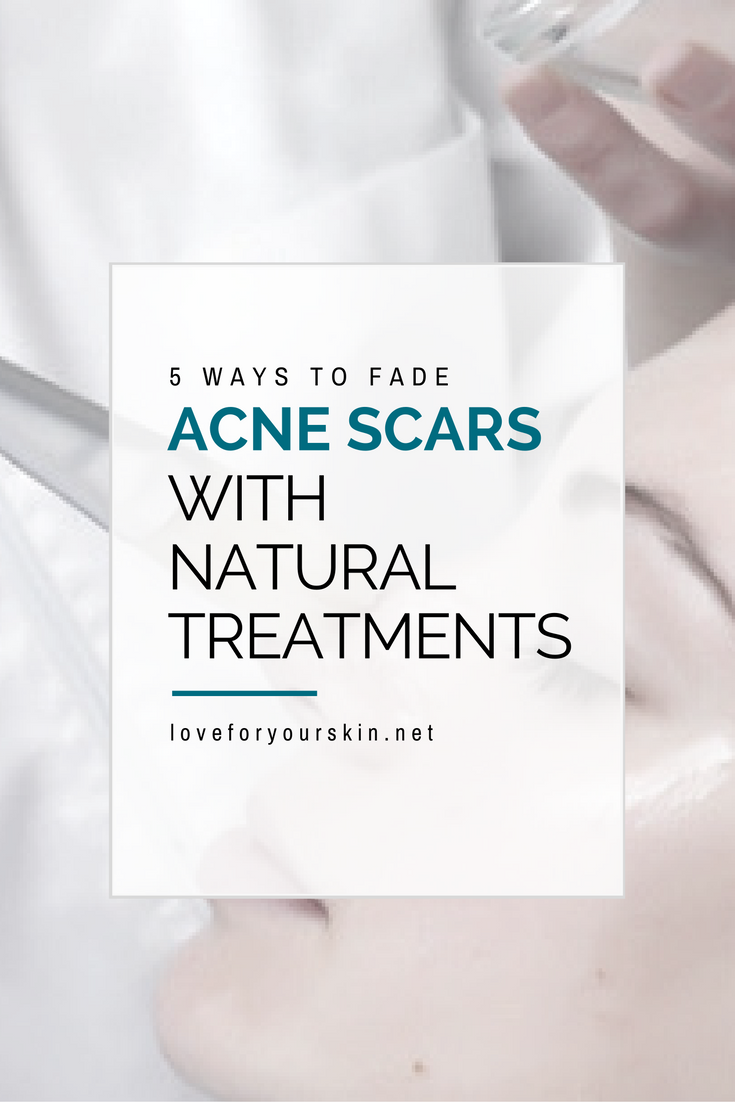 5 Ways to Fade Acne Scars Naturally
