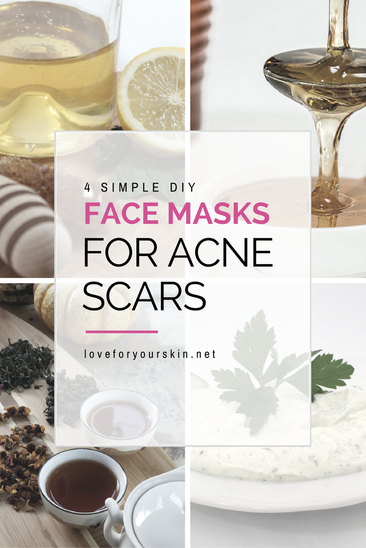 4 DIY Face Masks for Acne Scars