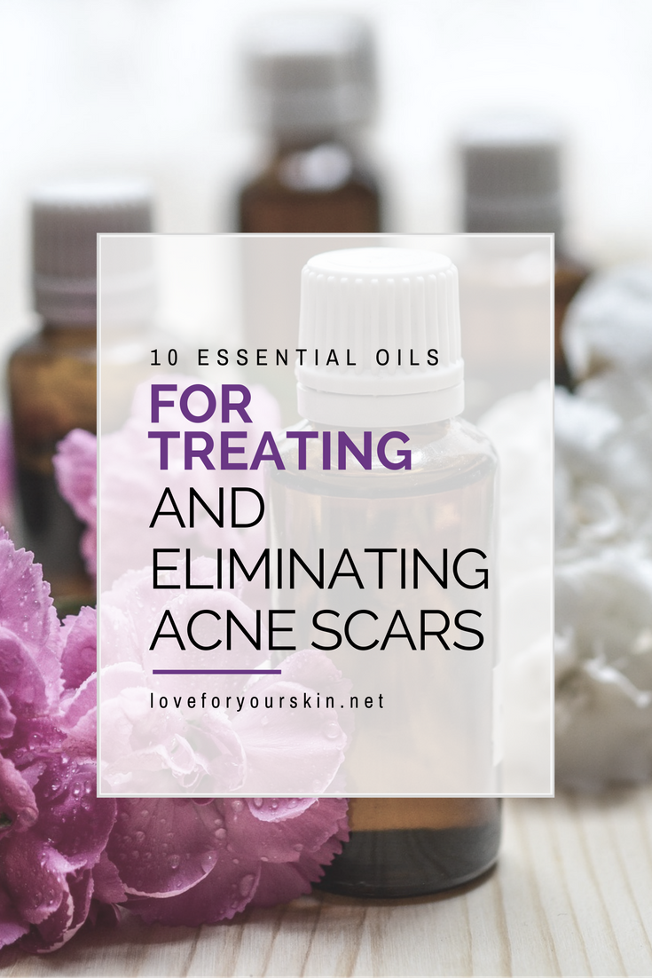 10 Essential Oils to Treat Acne Scars - Loveforyourskin net
