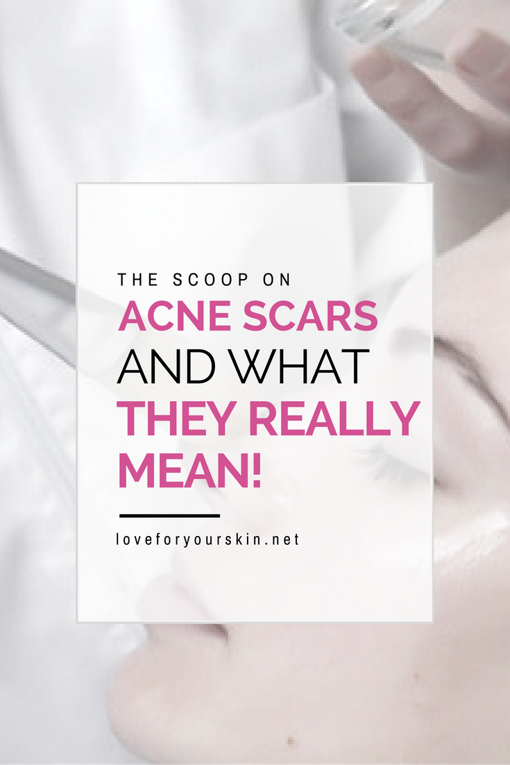 The Scoop on Acne Spots and What They Mean