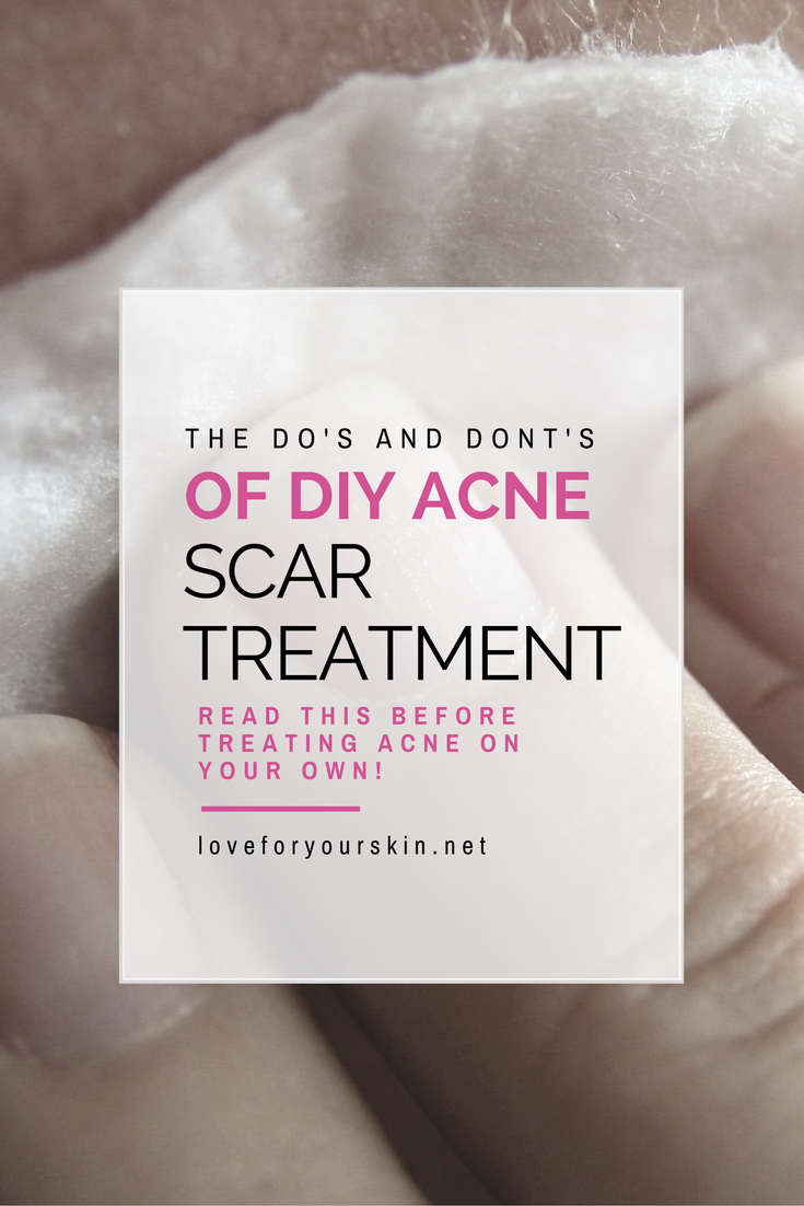 The Do's and Don'ts of Acne Scar Treatment