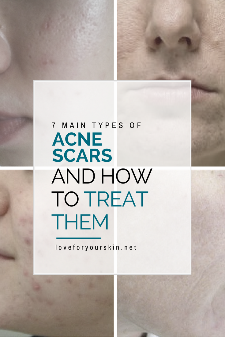 7 Types of Acne Scars and How to Treat Them