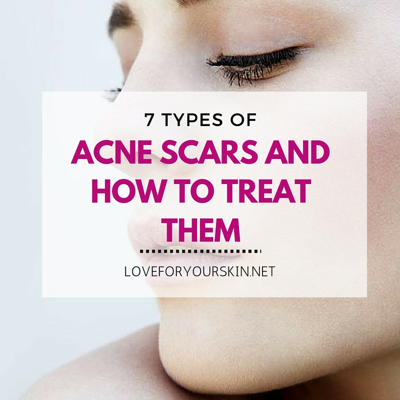 7 Types of Acne Scars and How to Treat Them ...