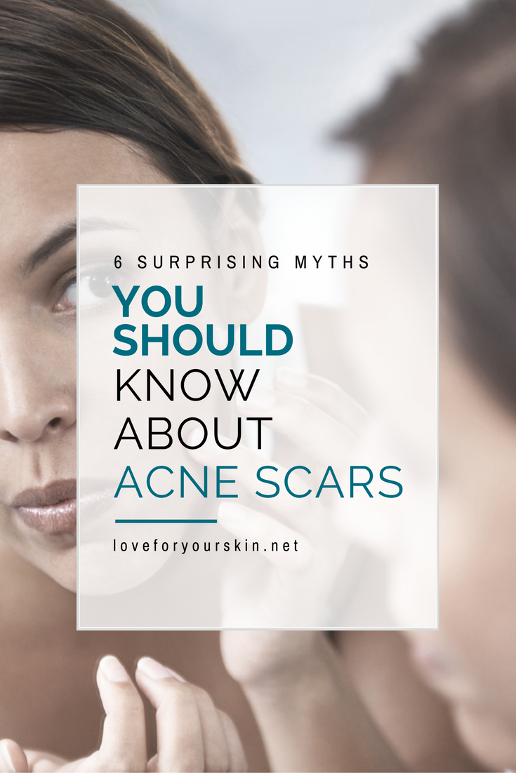 6 Surprising Myths About Acne Scars You Should Know