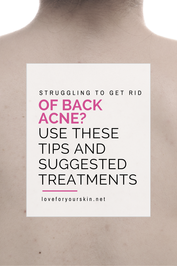 problems with back acne Archives – Loveforyourskin.net
